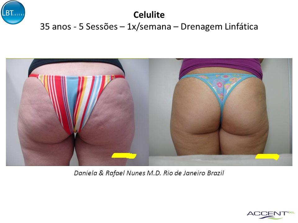 35 anos - 5 Sessões – 1x/semana – Drenagem Linfática Daniela & Rafael Nunes M.D. Rio de Janeiro Brazil