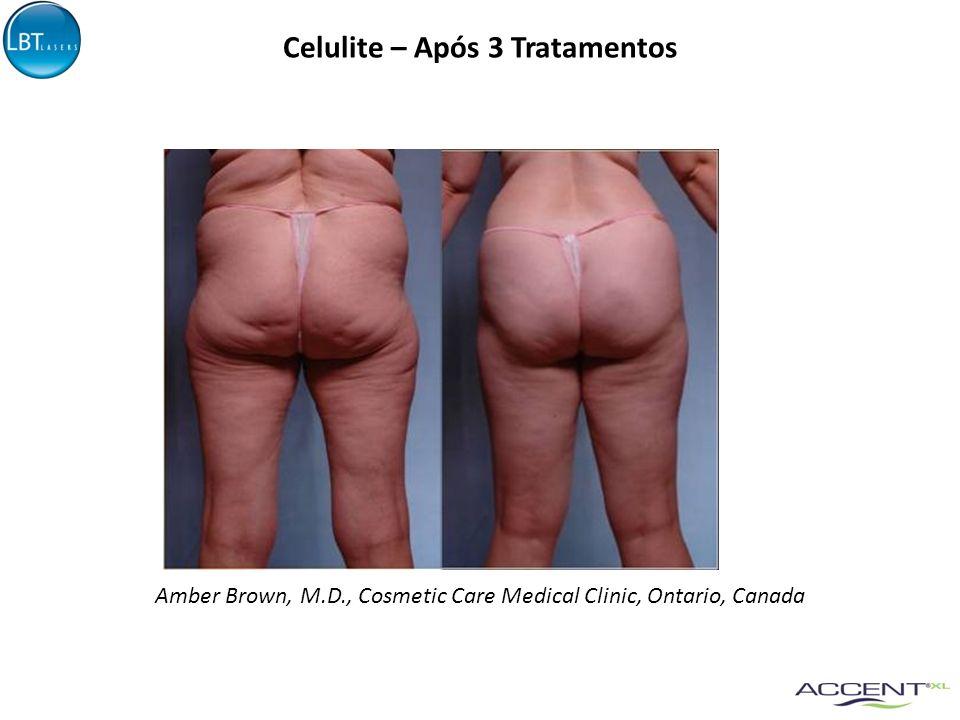 Celulite – Após 2 Tratamentos Antes 15 dias após 2 Sessões45 dias após 2 Sessões