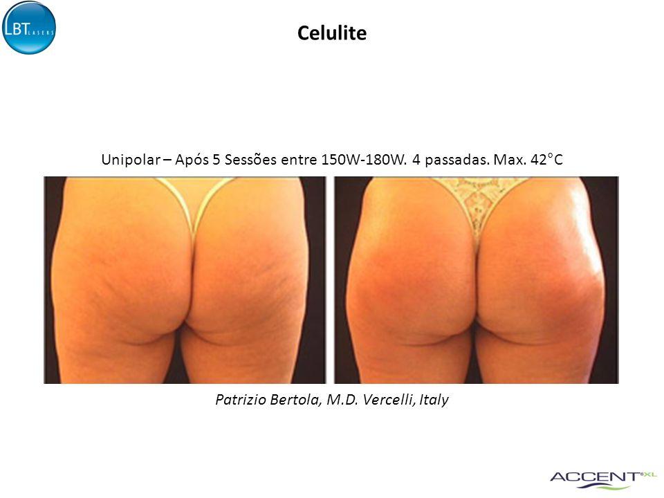 Celulite Patrizio Bertola, M.D. Vercelli, Italy Unipolar – Após 5 Sessões entre 150W-180W. 4 passadas. Max. 42°C
