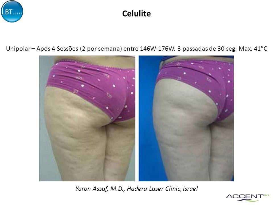 Celulite Yaron Assaf, M.D., Hadera Laser Clinic, Israel Unipolar – Após 4 Sessões (2 por semana) entre 146W-176W. 3 passadas de 30 seg. Max. 41°C