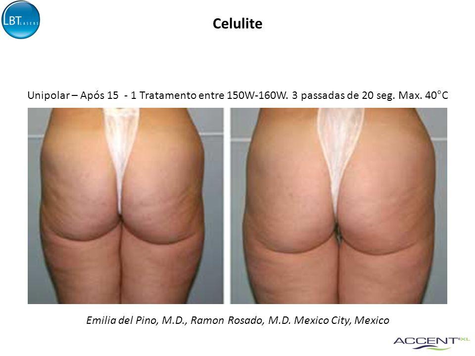 Celulite Emilia del Pino, M.D., Ramon Rosado, M.D. Mexico City, Mexico Unipolar – Após 15 - 1 Tratamento entre 150W-160W. 3 passadas de 20 seg. Max. 4