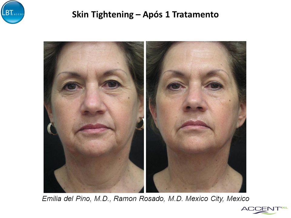 Emilia del Pino, M.D., Ramon Rosado, M.D. Mexico City, Mexico Skin Tightening – Após 1 Tratamento