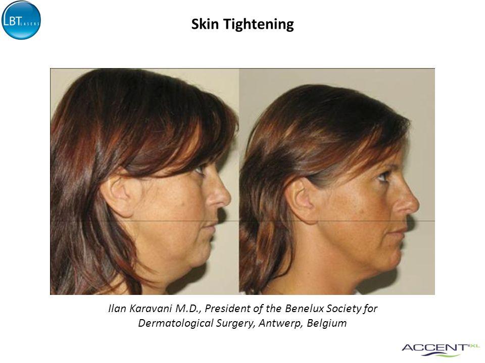 Skin Tightening Ilan Karavani M.D., President of the Benelux Society for Dermatological Surgery, Antwerp, Belgium