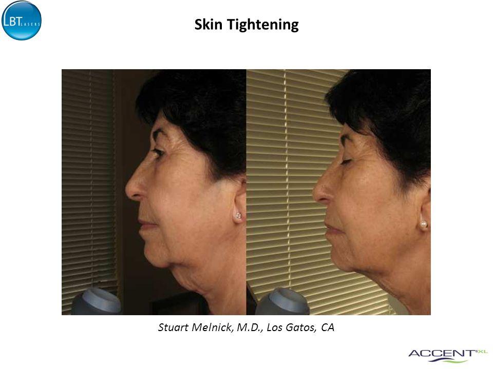 Skin Tightening Stuart Melnick, M.D., Los Gatos, CA