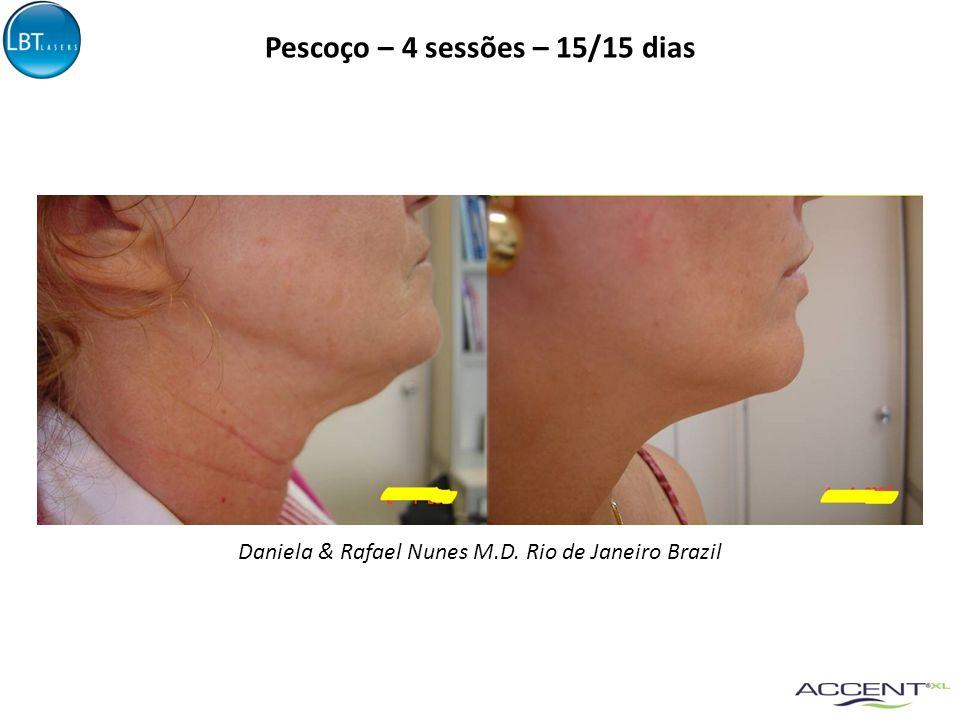 Pescoço – 4 sessões – 15/15 dias Daniela & Rafael Nunes M.D. Rio de Janeiro Brazil