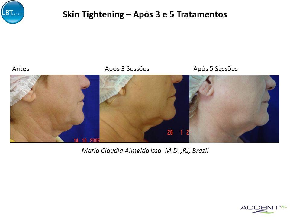 Skin Tightening – Após 3 e 5 Tratamentos Maria Claudia Almeida Issa M.D.,RJ, Brazil AntesApós 3 SessõesApós 5 Sessões