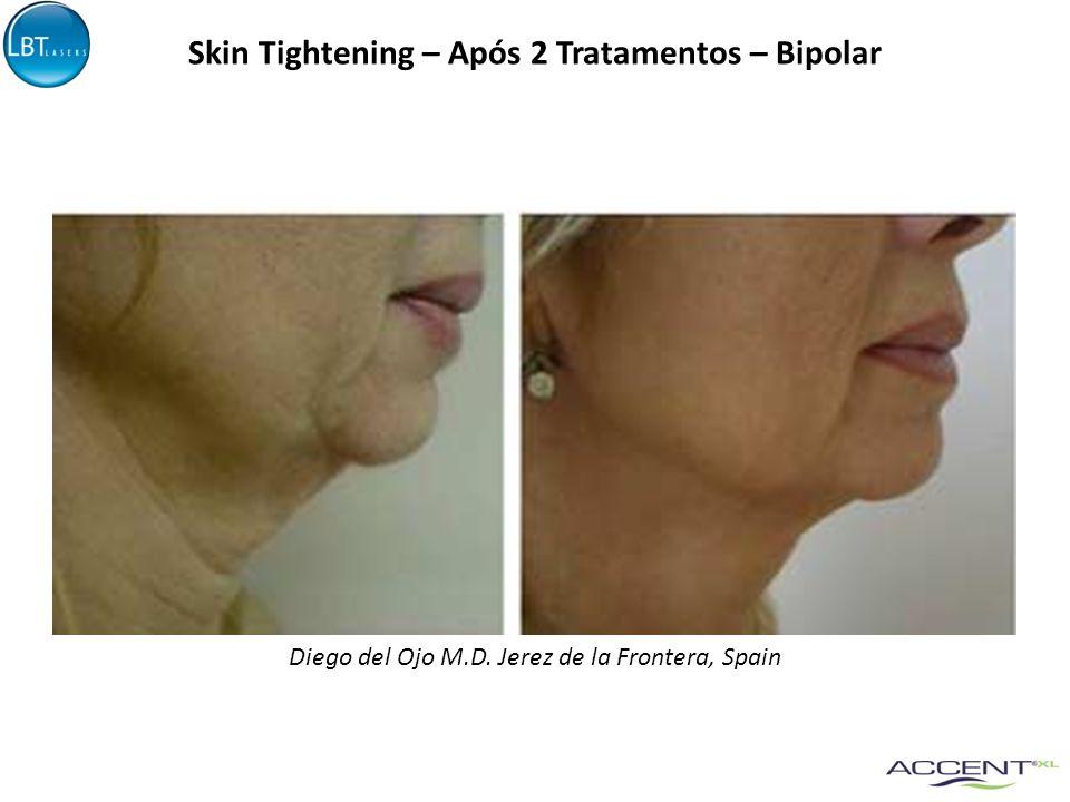 Skin Tightening – Após 2 Tratamentos – Bipolar Diego del Ojo M.D. Jerez de la Frontera, Spain