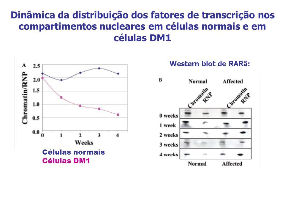 Dinâmica da distribuição dos fatores de transcrição nos compartimentos nucleares em células normais e em células DM1 Células normais Células DM1 Weste