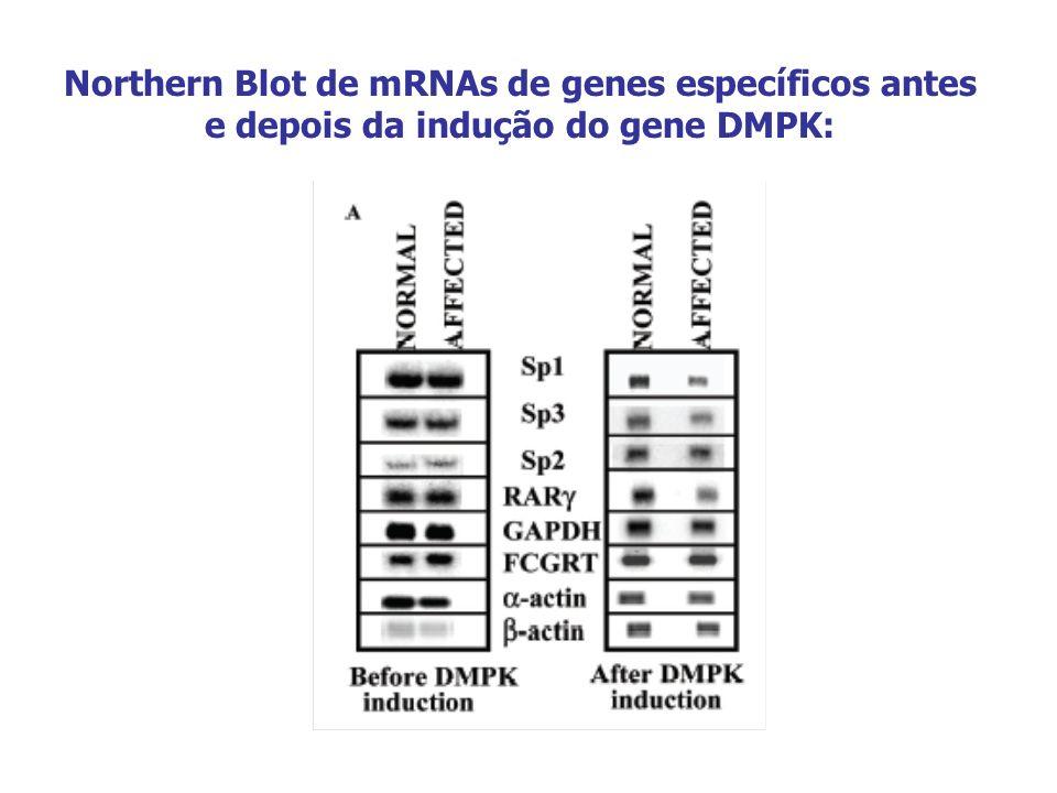 Northern Blot de mRNAs de genes específicos antes e depois da indução do gene DMPK:
