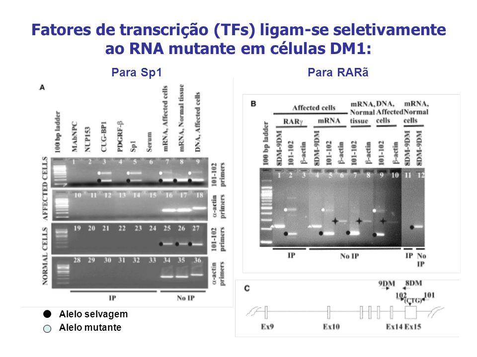 Fatores de transcrição (TFs) ligam-se seletivamente ao RNA mutante em células DM1: Alelo selvagem Alelo mutante Para Sp1Para RARã