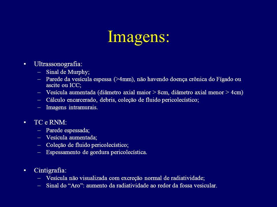 Imagens: Ultrassonografia: –Sinal de Murphy; –Parede da vesícula espessa (>4mm), não havendo doença crônica do Fígado ou ascite ou ICC; –Vesícula aume