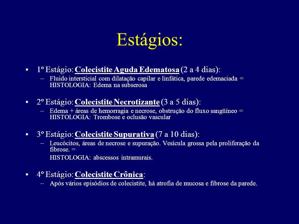 Estágios: 1º Estágio: Colecistite Aguda Edematosa (2 a 4 dias): –Fluido intersticial com dilatação capilar e linfática, parede edemaciada = HISTOLOGIA