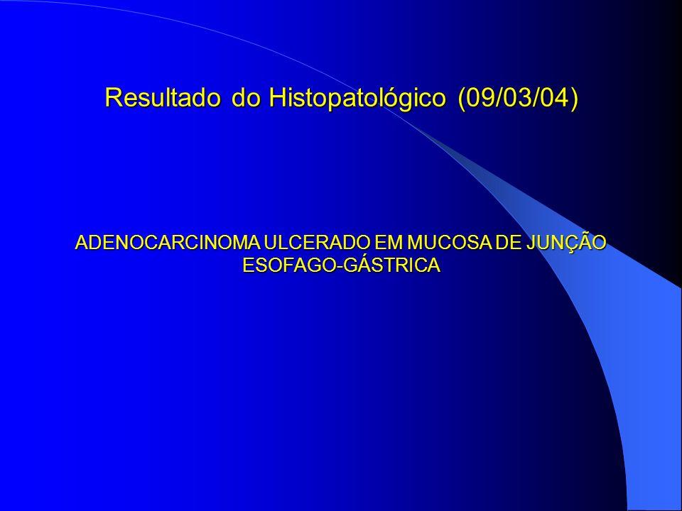 Resultado do Histopatológico (09/03/04) ADENOCARCINOMA ULCERADO EM MUCOSA DE JUNÇÃO ESOFAGO-GÁSTRICA