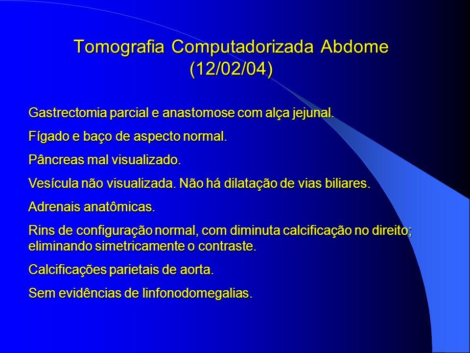 Tomografia Computadorizada Abdome (12/02/04) Gastrectomia parcial e anastomose com alça jejunal. Fígado e baço de aspecto normal. Pâncreas mal visuali