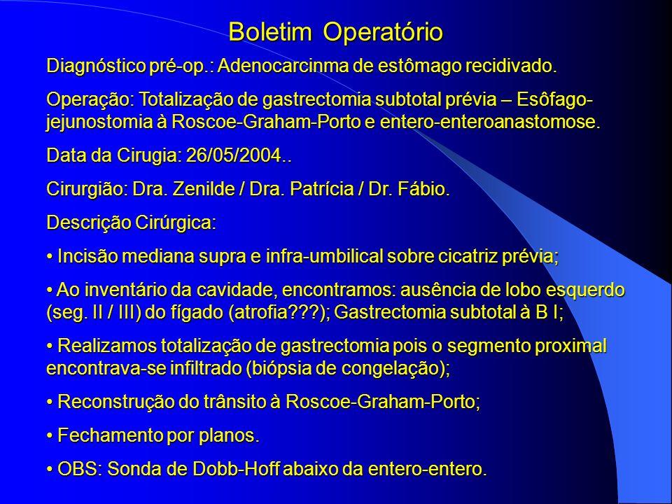 Boletim Operatório Diagnóstico pré-op.: Adenocarcinma de estômago recidivado. Operação: Totalização de gastrectomia subtotal prévia – Esôfago- jejunos