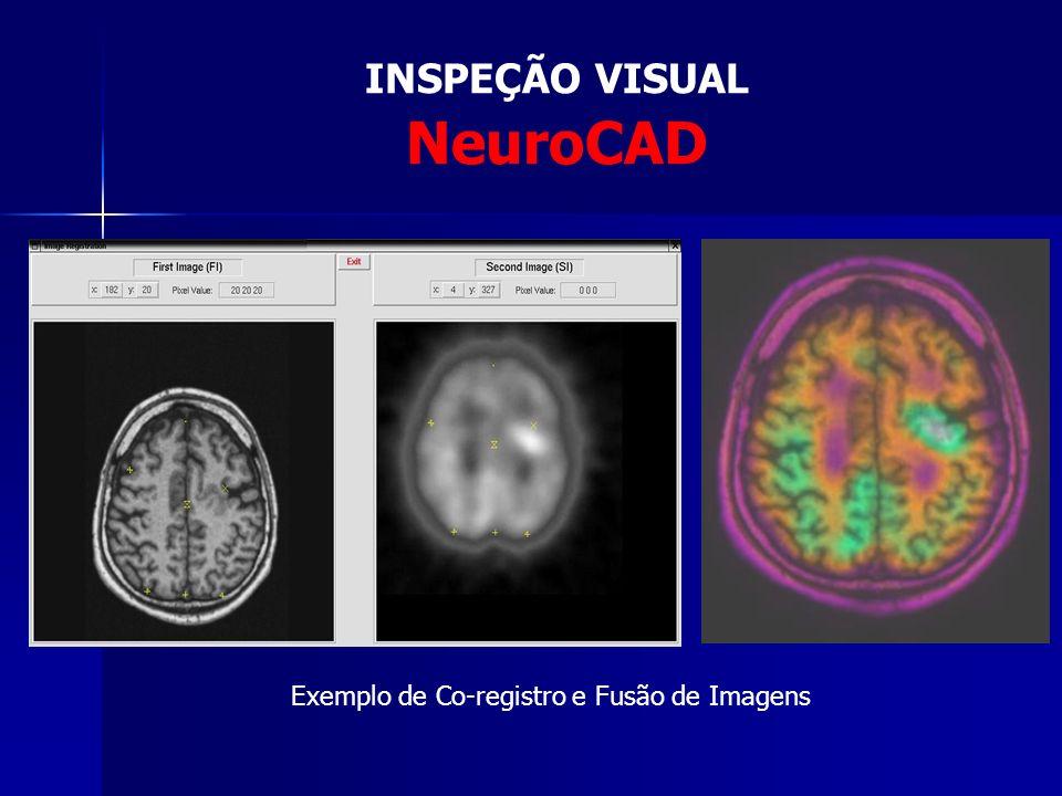 INSPEÇÃO VISUAL NeuroCAD Exemplo de Volumetria e Visualização 3D
