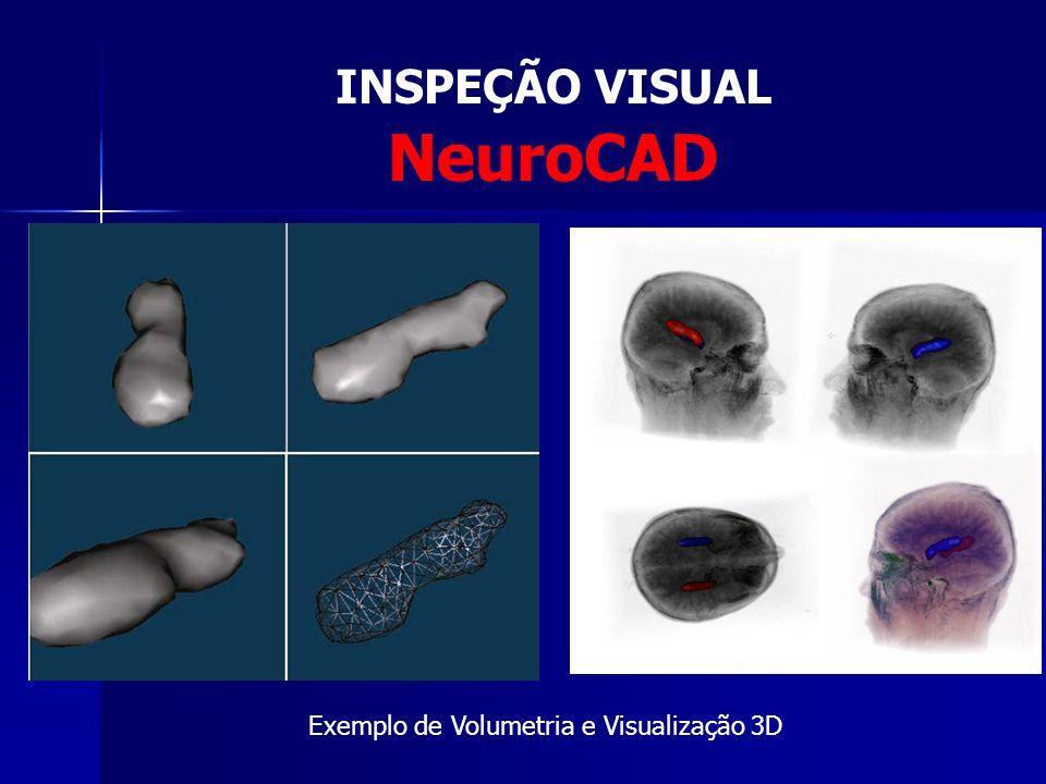 Processamento de Imagens Médicas INSPEÇÃO VISUAL INSPEÇÃO VISUAL DIAGNÓSTICO AUXILIADO POR COMPUTADOR (CAD – Computer-aided diagnosis) DIAGNÓSTICO AUXILIADO POR COMPUTADOR (CAD – Computer-aided diagnosis) RECUPERAÇÃO DE IMAGEM BASEADA EM CONTEÚDO (CBIR – Content-based image retrieval) RECUPERAÇÃO DE IMAGEM BASEADA EM CONTEÚDO (CBIR – Content-based image retrieval)