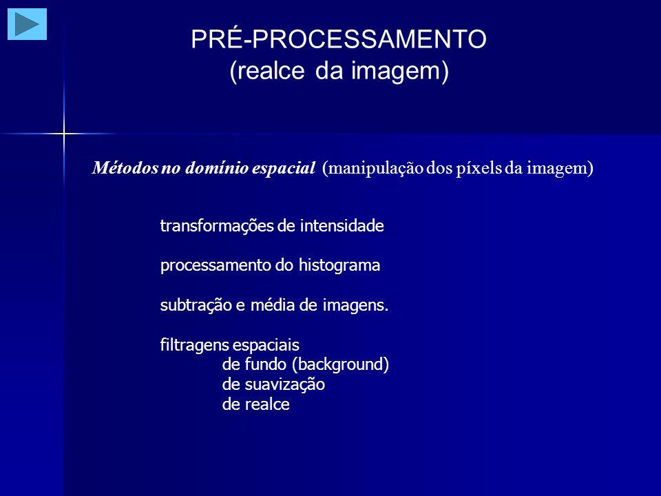 PRÉ-PROCESSAMENTO (realce da componente horizontal) Filtro de Prewitt - horizontal
