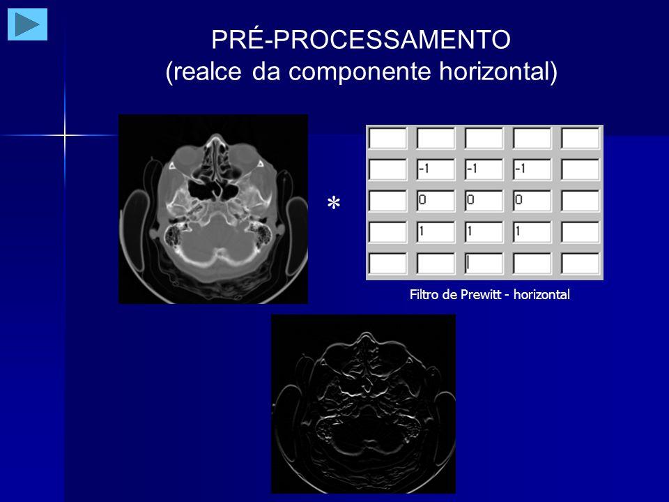 PRÉ-PROCESSAMENTO (realce da componente vertical) Filtro de Prewitt - vertical