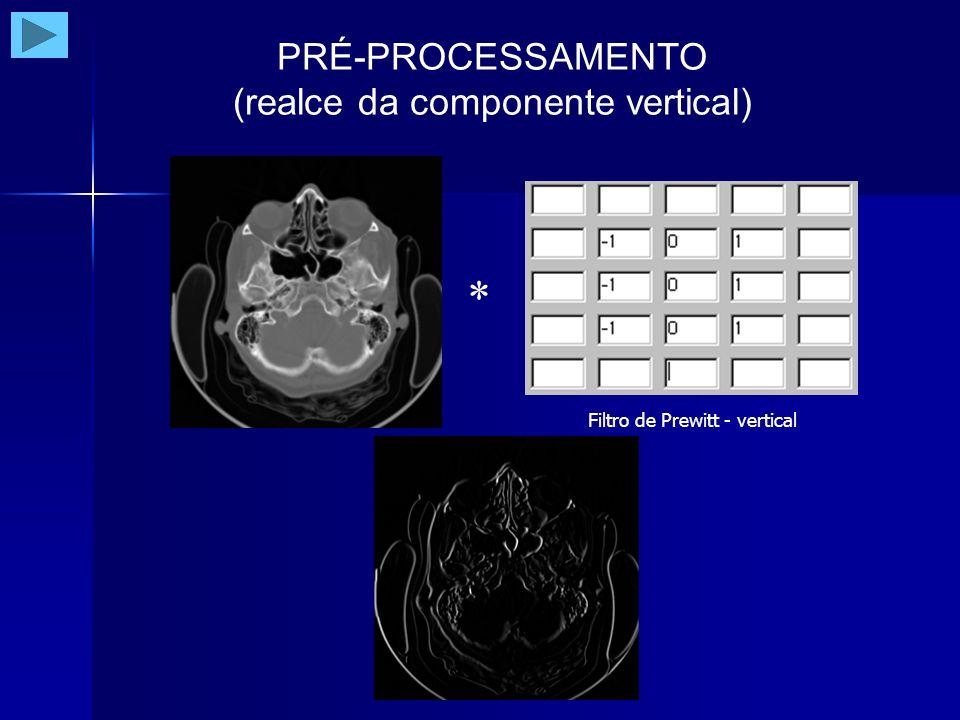 PRÉ-PROCESSAMENTO (soma das componentes)