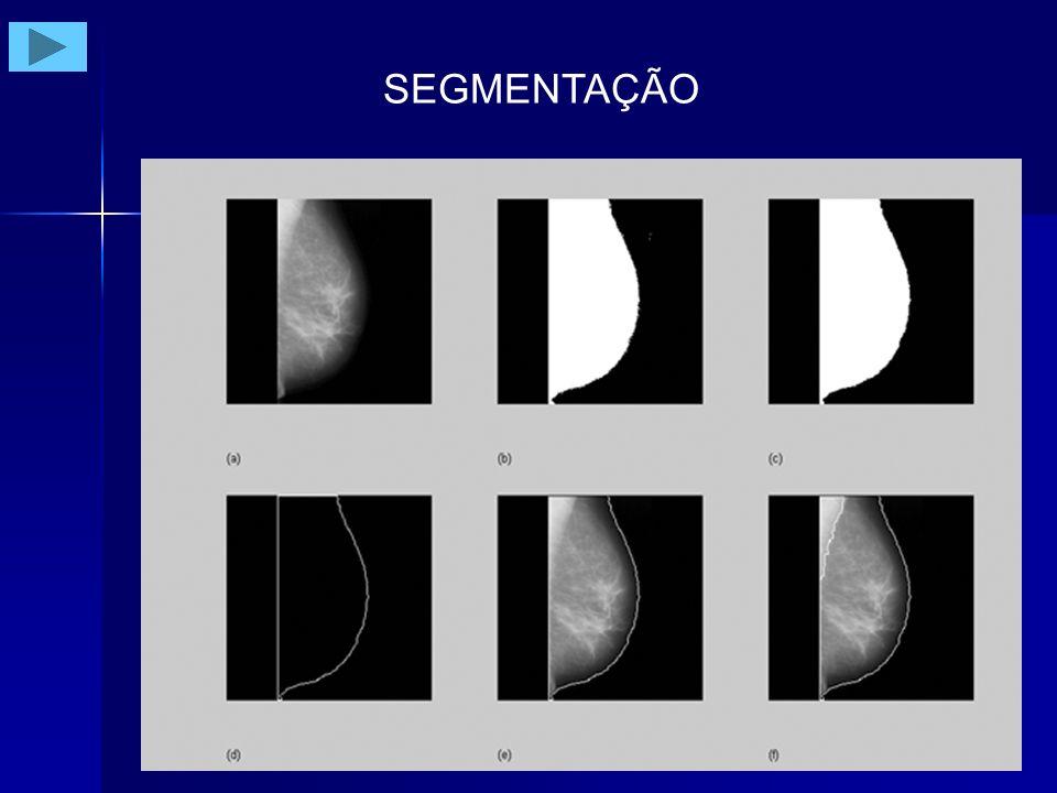 Exemplo de Segmentação de Imagem (a)ROI original com cluster (b) imagem após realce (c) imagem diferença (d) imagem segmentada (após aplicação de threshold adaptativo) Exemplo de Segmentação de Imagem (a)ROI original com nódulo (b) imagem segmentada após aplicação de threshold adaptativo e morfologia matemática Ferrari RJ et al.