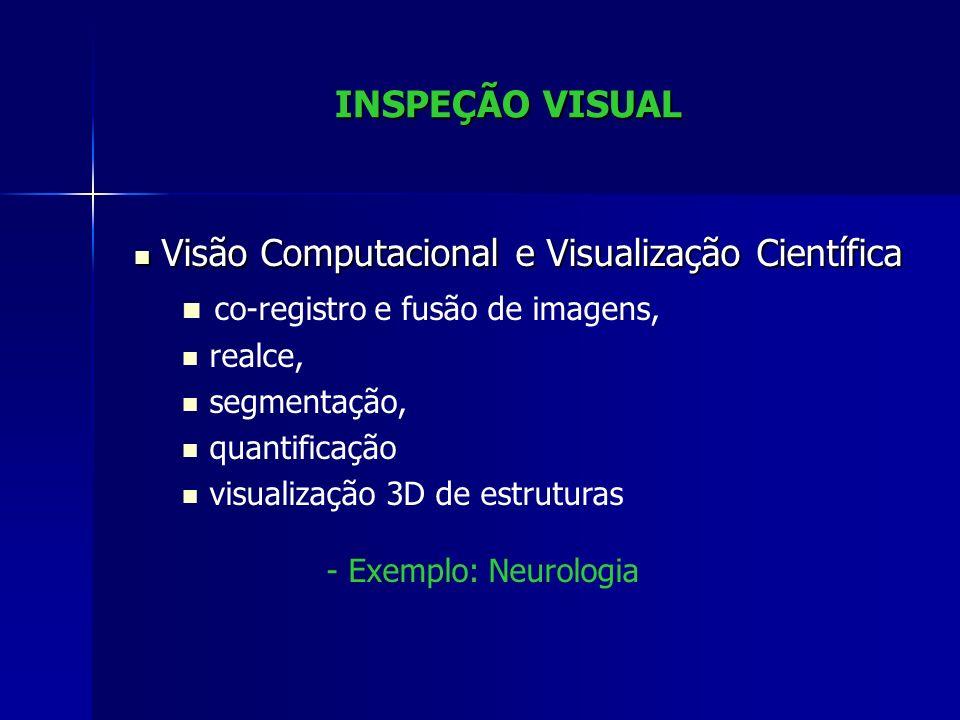 INSPEÇÃO VISUAL NeuroCAD Exemplo de Co-registro e Fusão de Imagens