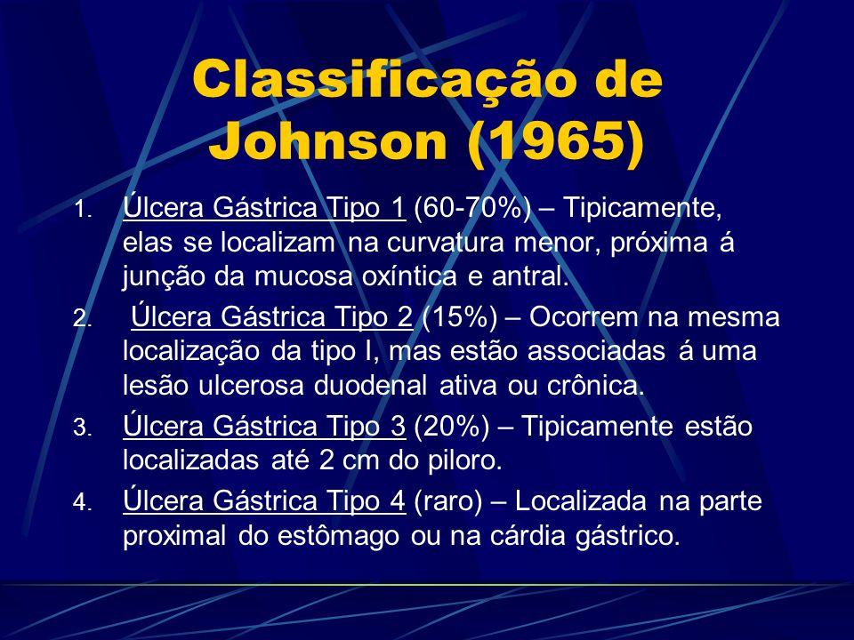 Classificação de Johnson (1965) 1. Úlcera Gástrica Tipo 1 (60-70%) – Tipicamente, elas se localizam na curvatura menor, próxima á junção da mucosa oxí