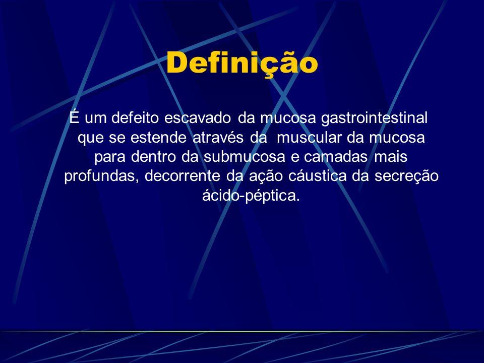 Definição É um defeito escavado da mucosa gastrointestinal que se estende através da muscular da mucosa para dentro da submucosa e camadas mais profun