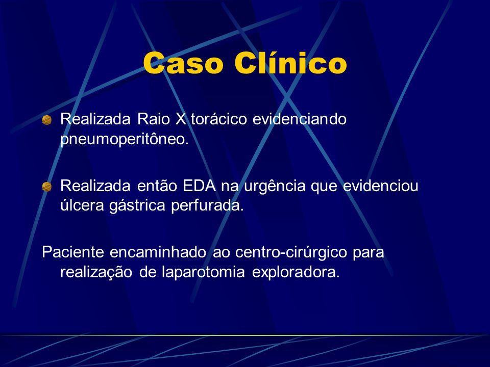 Caso Clínico Realizada Raio X torácico evidenciando pneumoperitôneo. Realizada então EDA na urgência que evidenciou úlcera gástrica perfurada. Pacient