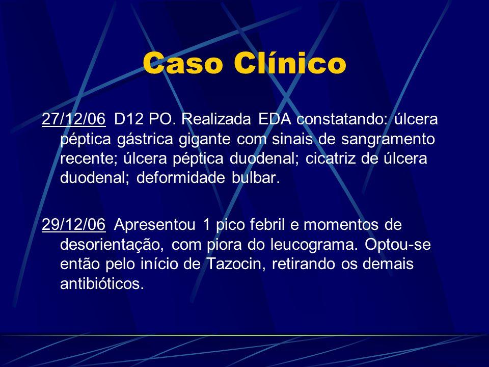 Caso Clínico 27/12/06 D12 PO. Realizada EDA constatando: úlcera péptica gástrica gigante com sinais de sangramento recente; úlcera péptica duodenal; c
