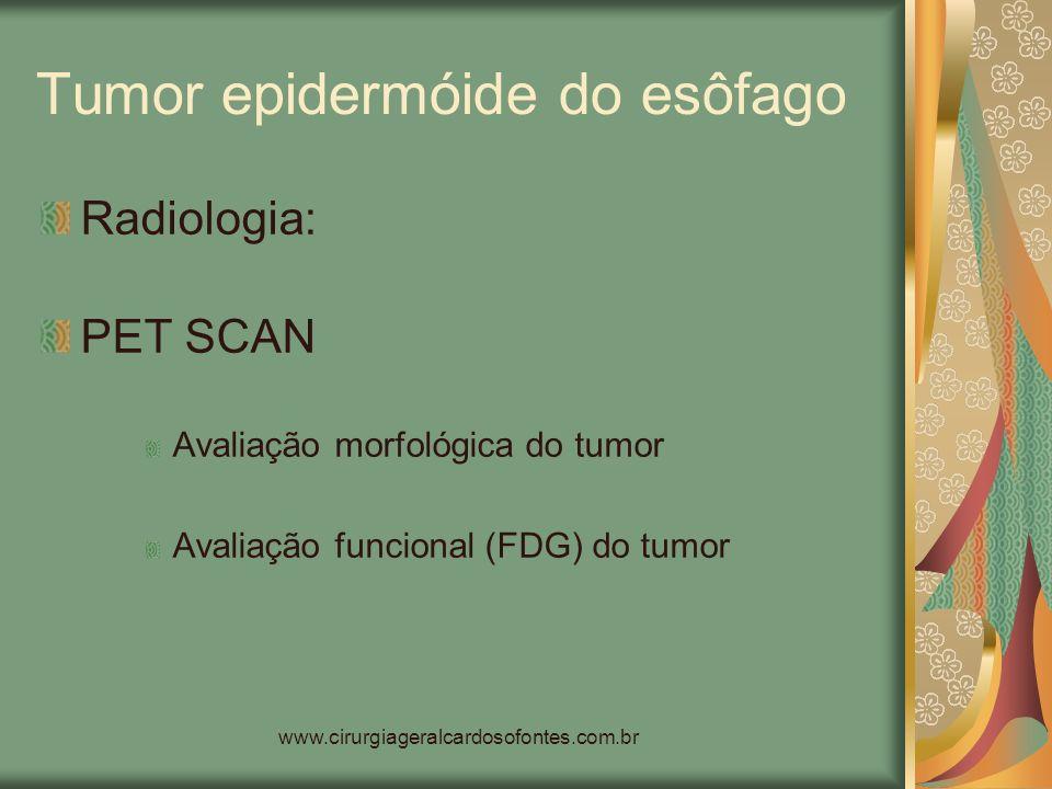 www.cirurgiageralcardosofontes.com.br Tumor epidermóide do esôfago Radiologia: PET SCAN Avaliação morfológica do tumor Avaliação funcional (FDG) do tu