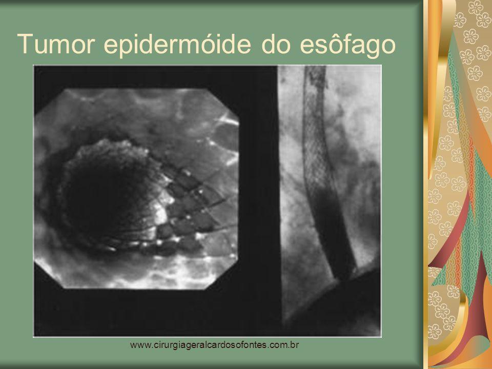 www.cirurgiageralcardosofontes.com.br Tumor epidermóide do esôfago