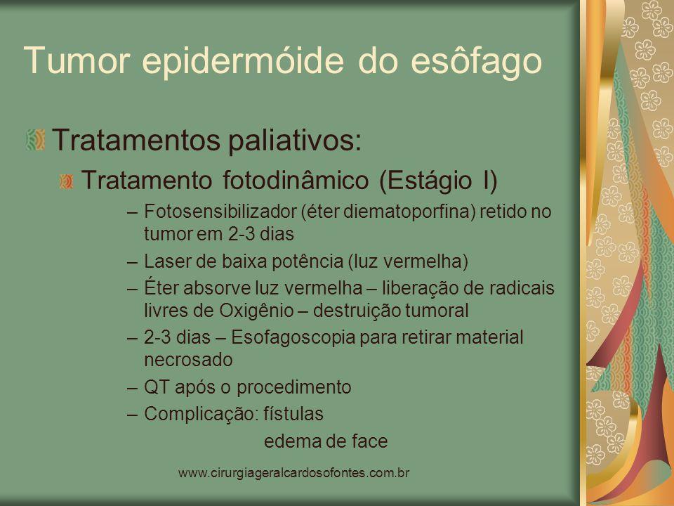 www.cirurgiageralcardosofontes.com.br Tumor epidermóide do esôfago Tratamentos paliativos: Tratamento fotodinâmico (Estágio I) –Fotosensibilizador (ét