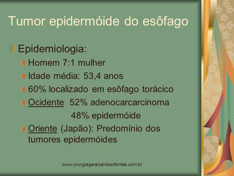 www.cirurgiageralcardosofontes.com.br Tumor epidermóide do esôfago Epidemiologia: Homem 7:1 mulher Idade média: 53,4 anos 60% localizado em esôfago to