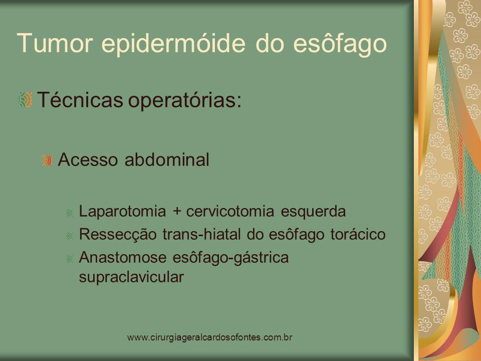 www.cirurgiageralcardosofontes.com.br Tumor epidermóide do esôfago Técnicas operatórias: Acesso abdominal Laparotomia + cervicotomia esquerda Ressecçã