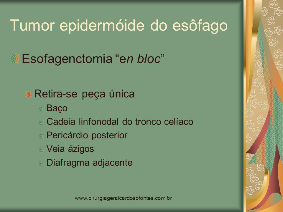 www.cirurgiageralcardosofontes.com.br Tumor epidermóide do esôfago Esofagenctomia en bloc Retira-se peça única Baço Cadeia linfonodal do tronco celíac