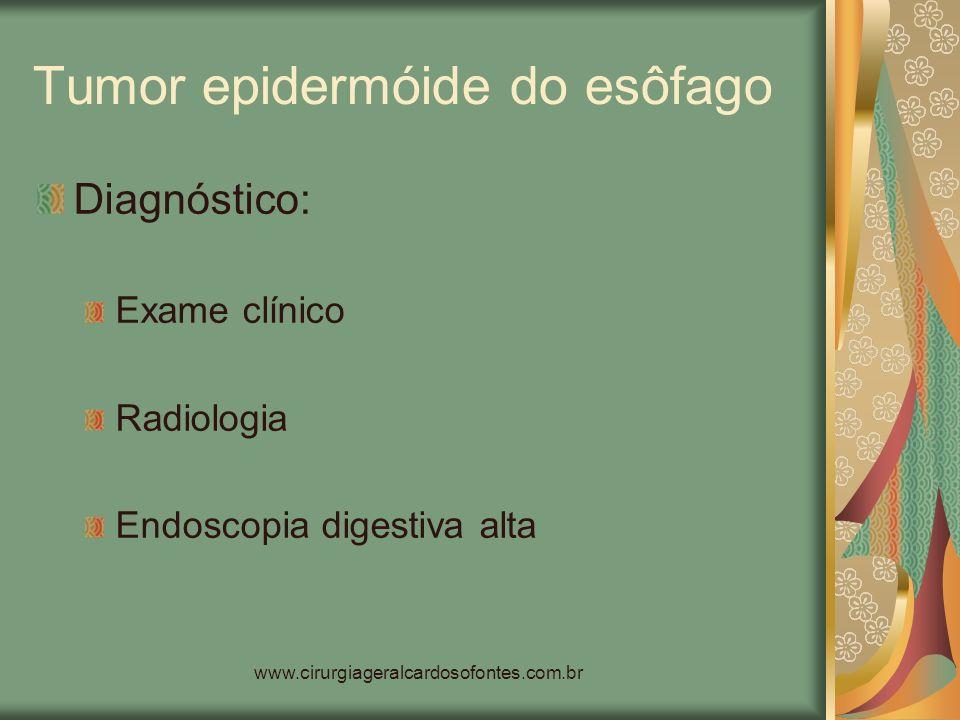 www.cirurgiageralcardosofontes.com.br Tumor epidermóide do esôfago Diagnóstico: Exame clínico Radiologia Endoscopia digestiva alta