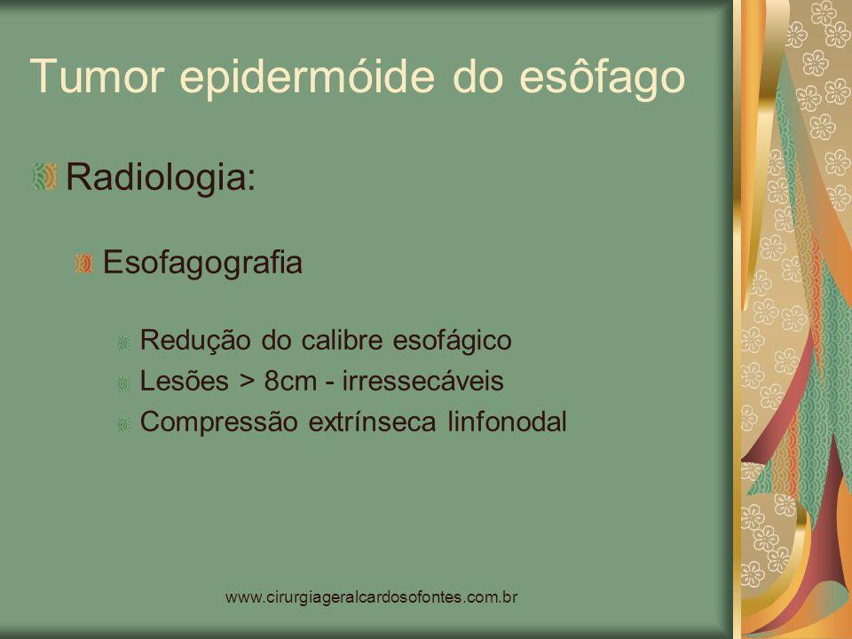 www.cirurgiageralcardosofontes.com.br Tumor epidermóide do esôfago Radiologia: Esofagografia Redução do calibre esofágico Lesões > 8cm - irressecáveis