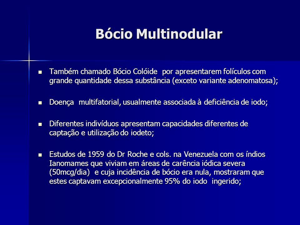 Bócio Multinodular Também chamado Bócio Colóide por apresentarem folículos com grande quantidade dessa substância (exceto variante adenomatosa); També