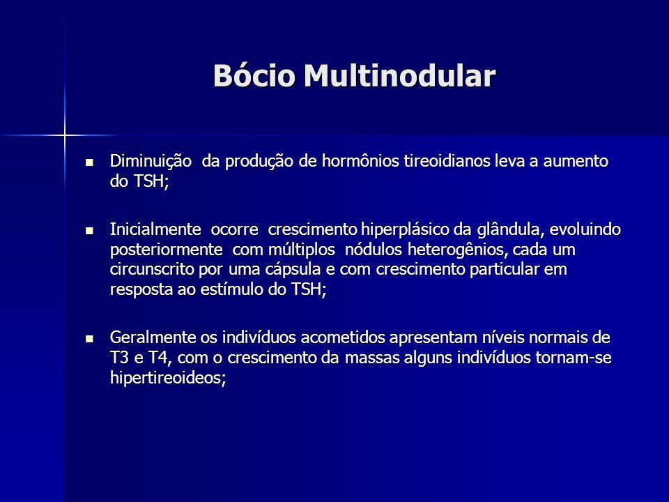 Bócio Multinodular Diminuição da produção de hormônios tireoidianos leva a aumento do TSH; Diminuição da produção de hormônios tireoidianos leva a aum