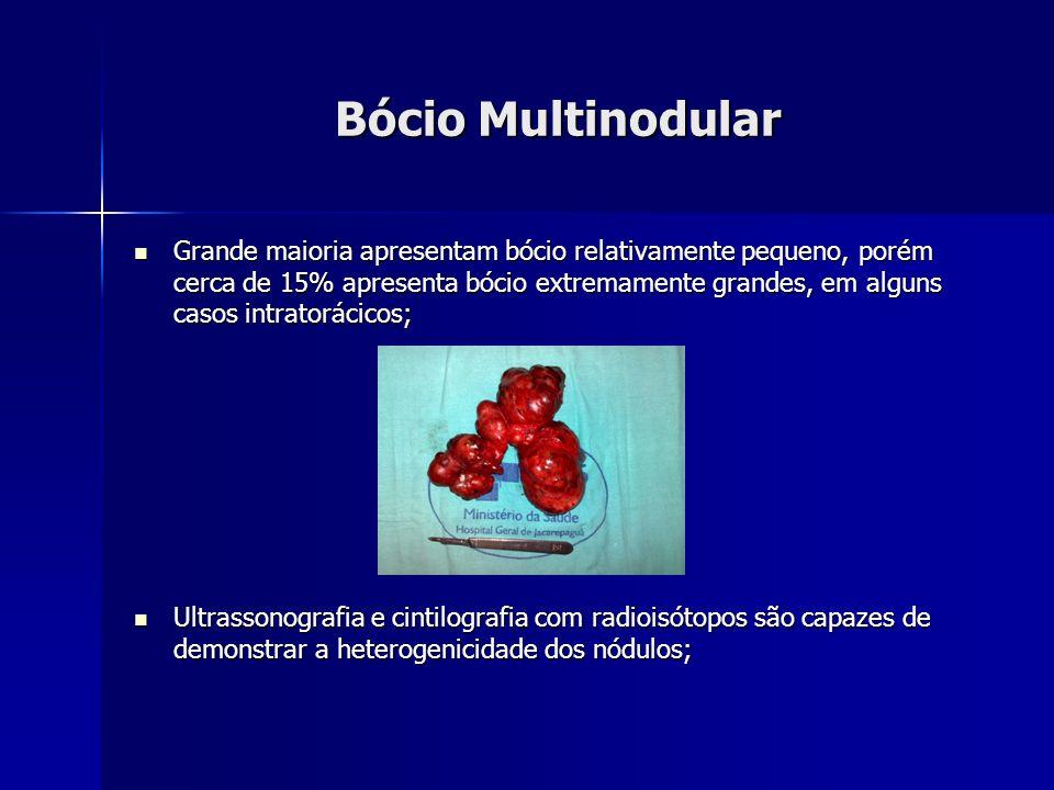 Bócio Multinodular Grande maioria apresentam bócio relativamente pequeno, porém cerca de 15% apresenta bócio extremamente grandes, em alguns casos int