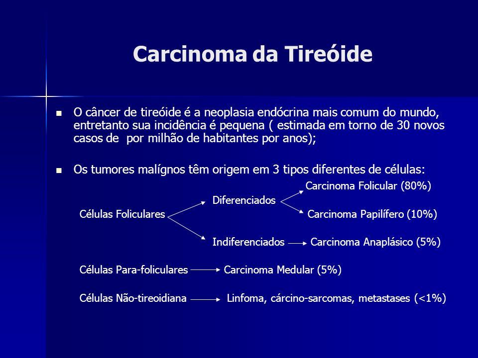 Carcinoma da Tireóide O câncer de tireóide é a neoplasia endócrina mais comum do mundo, entretanto sua incidência é pequena ( estimada em torno de 30