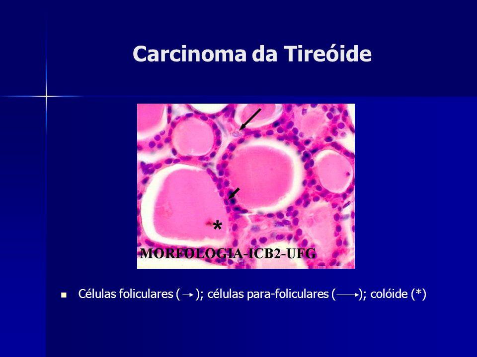 Carcinoma da Tireóide Células foliculares ( ); células para-foliculares ( ); colóide (*)