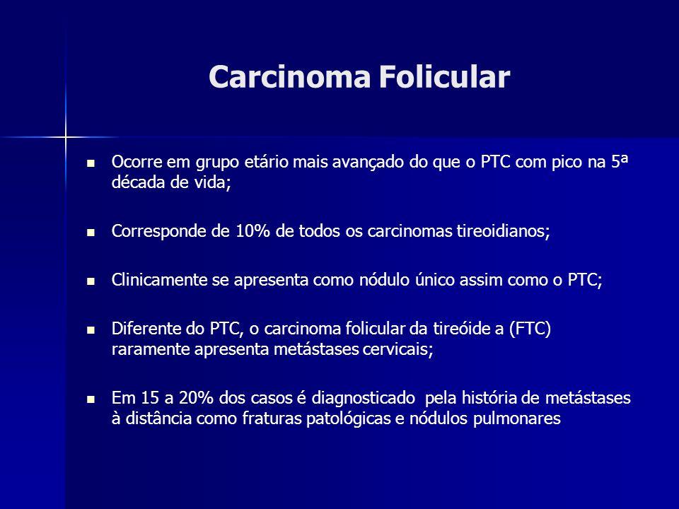 Carcinoma Folicular Ocorre em grupo etário mais avançado do que o PTC com pico na 5ª década de vida; Corresponde de 10% de todos os carcinomas tireoid