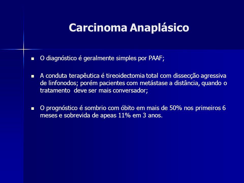 Carcinoma Anaplásico O diagnóstico é geralmente simples por PAAF; A conduta terapêutica é tireoidectomia total com dissecção agressiva de linfonodos;