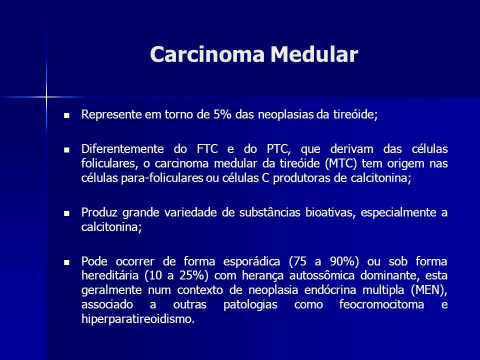 Carcinoma Medular Represente em torno de 5% das neoplasias da tireóide; Diferentemente do FTC e do PTC, que derivam das células foliculares, o carcino