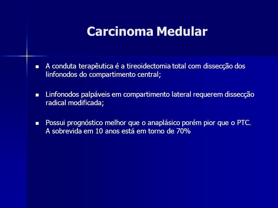 Carcinoma Medular A conduta terapêutica é a tireoidectomia total com dissecção dos linfonodos do compartimento central; Linfonodos palpáveis em compar