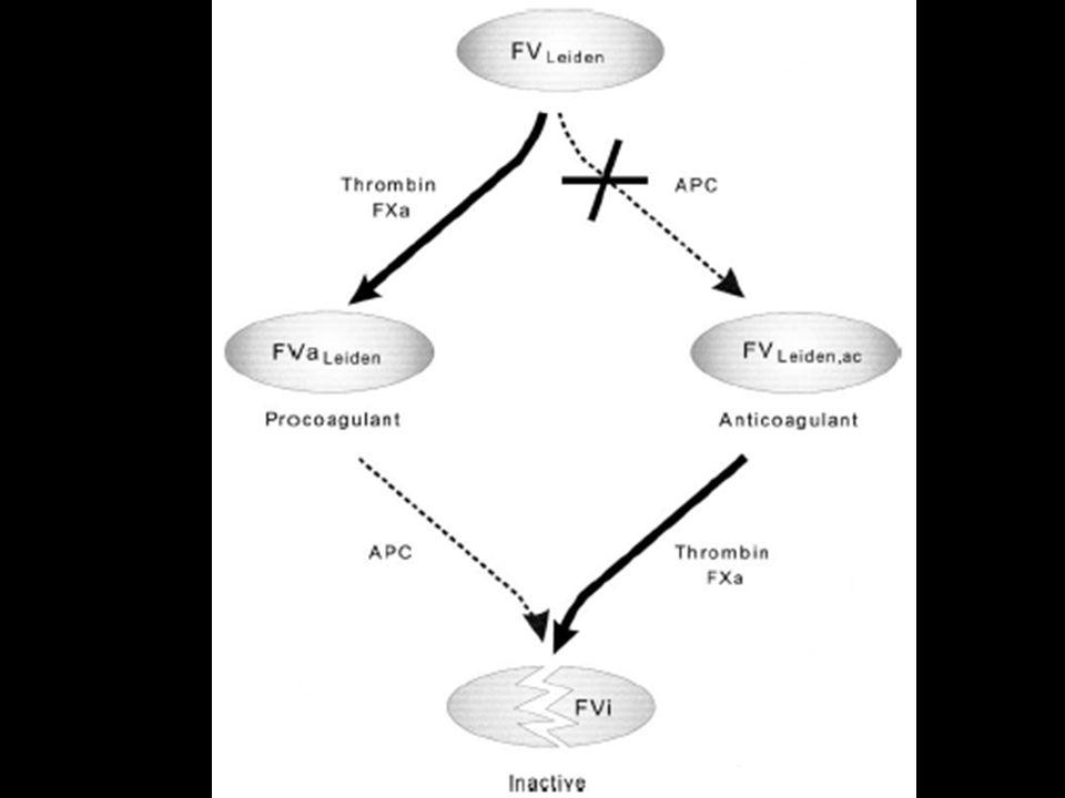 Anticoagulação Fator V Leiden Isquemia Mesentérica Trombose recorrente.