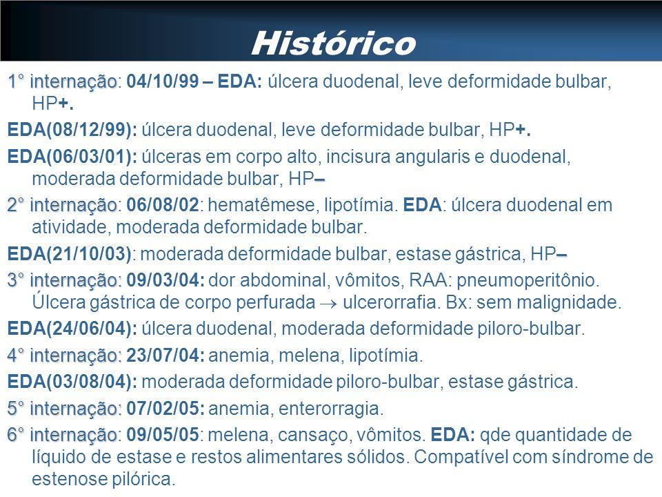 Histórico 1° internação 1° internação: 04/10/99 – EDA: úlcera duodenal, leve deformidade bulbar, HP+. EDA(08/12/99): úlcera duodenal, leve deformidade
