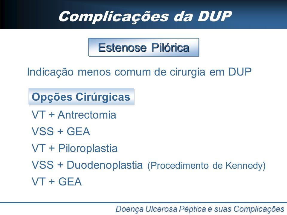Complicações da DUP Doença Ulcerosa Péptica e suas Complicações Estenose Pilórica VSS + GEA Opções Cirúrgicas VT + Antrectomia VT + Piloroplastia VSS